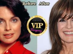 Linda Gray Plastic Surgery