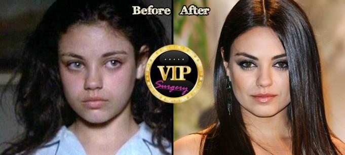 Mila Kunis Nose Job
