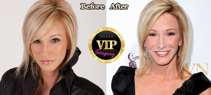 Paula White Plastic Surgery