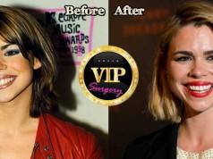 Billie Piper Plastic Surgery
