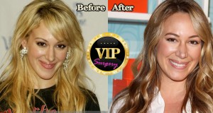 Haylie Duff Plastic Surgery
