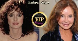 Jacklyn Zeman Plastic Surgery