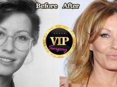 Linda Kozlowski Plastic Surgery