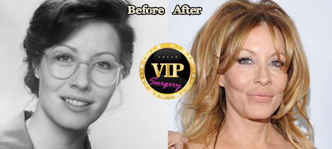 Linda Kozlowski Plastic Surgery Before And After Pictures