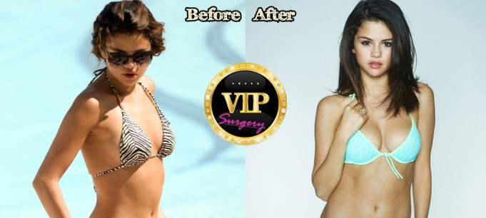 Selena Gomez Breast Implants