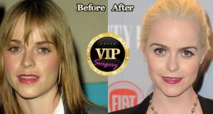 Taryn Manning Plastic Surgery