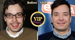 Jimmy Fallon Plastic Surgery