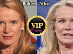Katty Kay Plastic Surgery