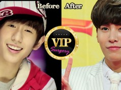 No Min woo Plastic Surgery