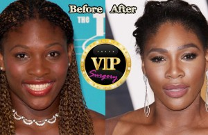 Serena Williams Plastic Surgery