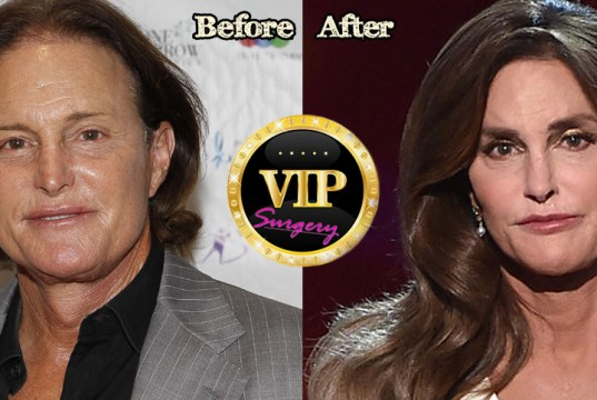 Caitlyn Jenner Plastic Surgery