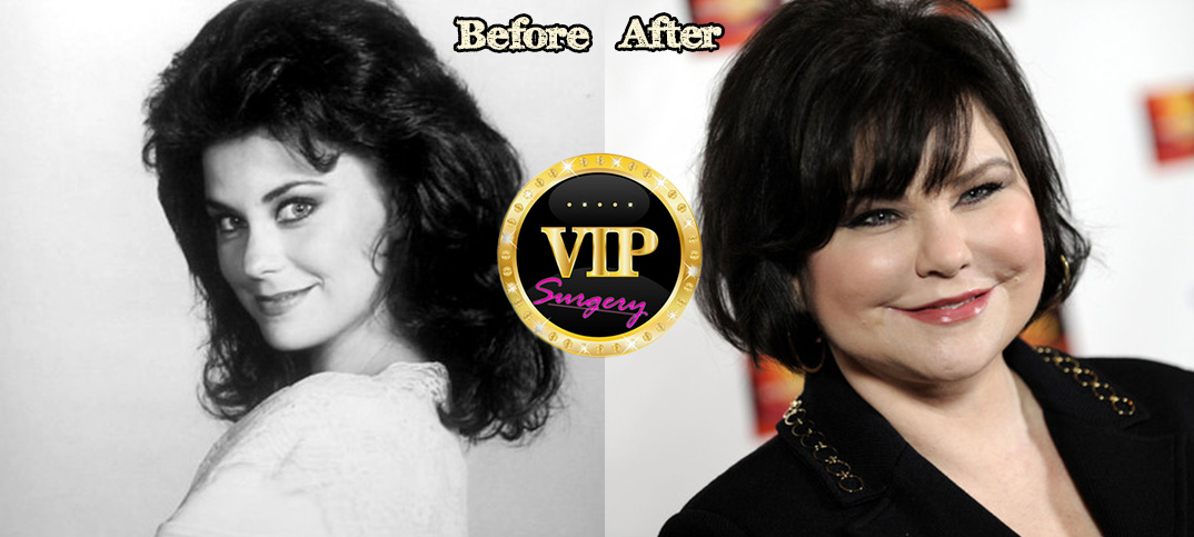 Delta Burke before and after plastic surgery