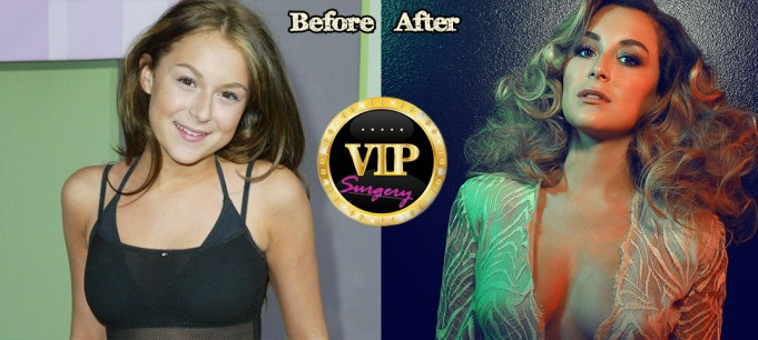 Alexa Vega plastic surgery pics