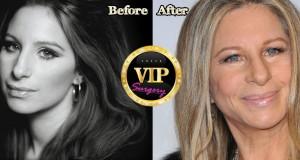 Barbra Streisand plastic surgery