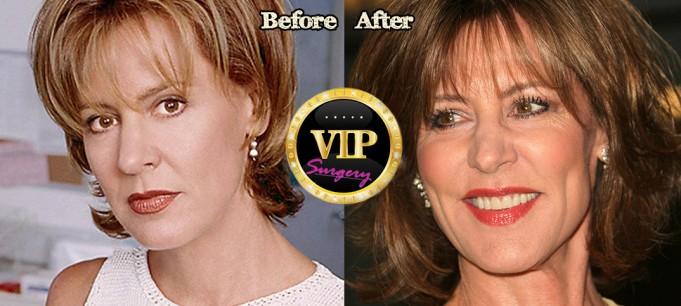 Christine Lahti plastic surgery