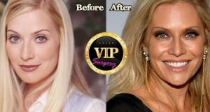 Emily Procter plastic surgery