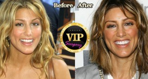 Jennifer Esposito plastic surgery