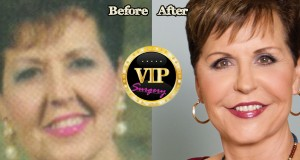 Joyce Meyers plastic surgery
