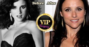 Julia Louis-Dreyfus plastic surgery