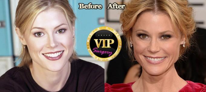 Julie Bowen plastic surgery