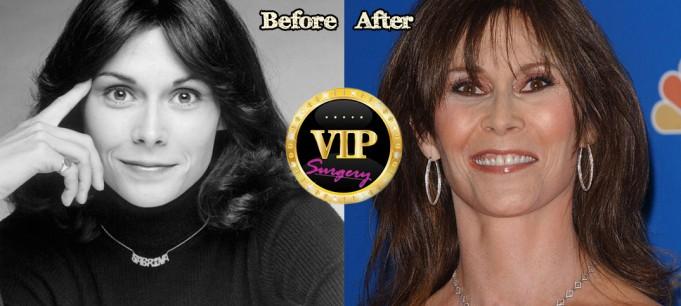 Kate Jackson Plastic Surgery