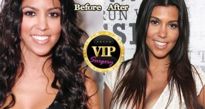 Kourtney Kardashian plastic surgery
