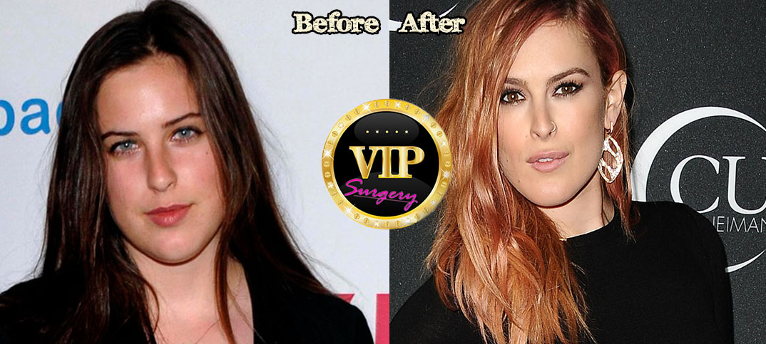 Rumer willis chin before after