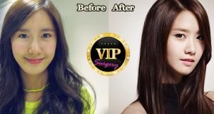 Yoona plastic surgery