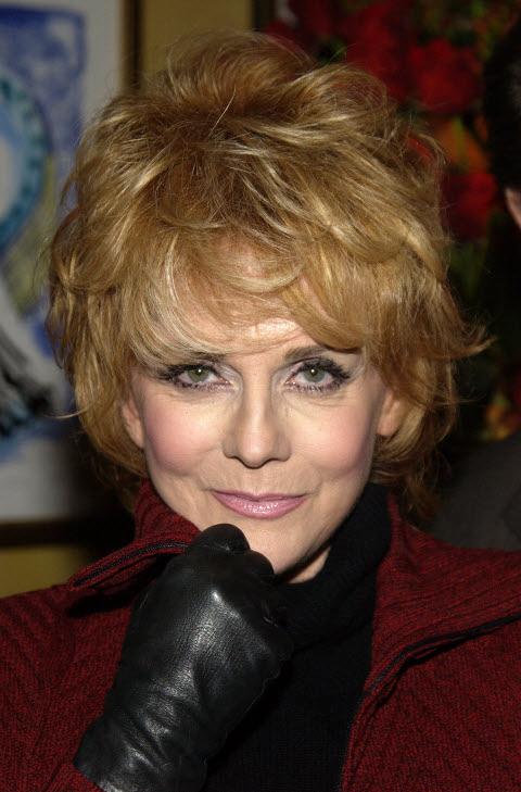 Ann margaret facial fracture