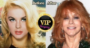 ann-margret plastic surgery