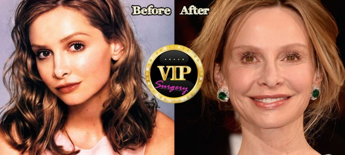 calista flockhart plastic surgery