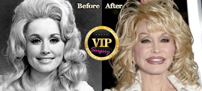 dolly parton plastic surgery