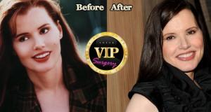 geena davis plastic surgery