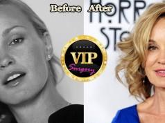 jessica Lange plastic surgery
