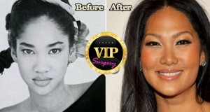 kimora lee simmons plastic surgery