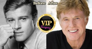 robert Redford plastic surgery