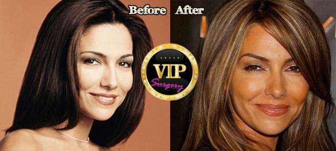 vanessa marcil plastic surgery