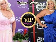 Beth Chapman plastic surgery