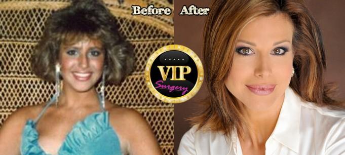 Dominique Sachse plastic surgery