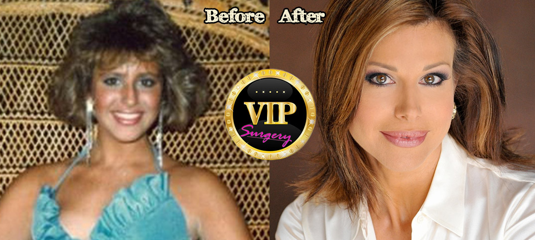 Dominique Sachse Plastic Surgery Before And After Photos
