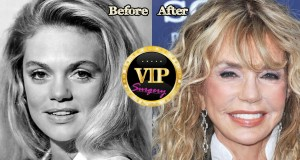 Dyan Cannon plastic surgery