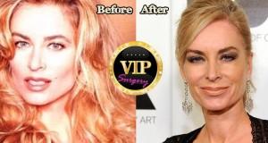 Eileen Davidson plastic surgery