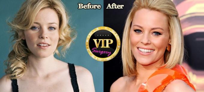 Elizabeth Banks plastic surgery