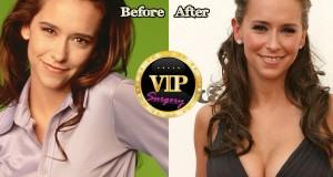 Jennifer Love Hewitt plastic surgery