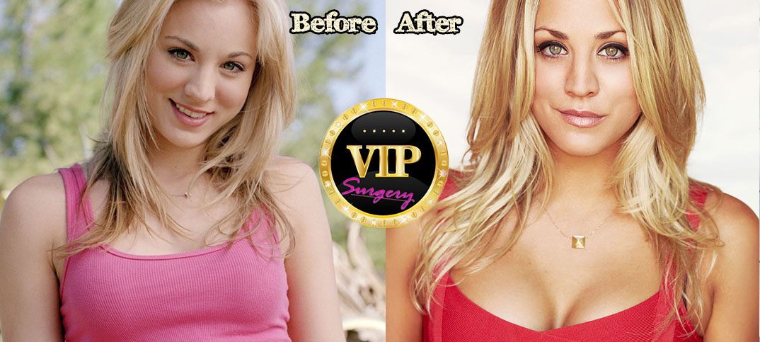 kaley cuoco plastic surgery before and after photos
