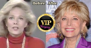 Lesley Stahl plastic surgery