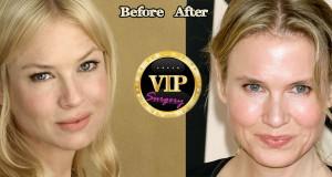 Renee Zellweger plastic surgery