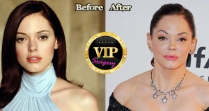Rose Mcgowan Plastic Surgery