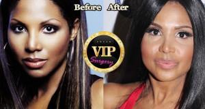 Toni Braxton Plastic Surgery