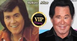 Wayne Newton Plastic Surgery